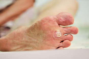 What Does A Plantar Wart Look Like